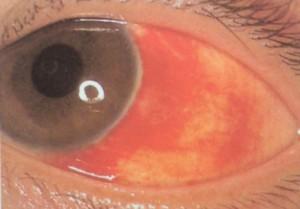 結膜下出血症例3