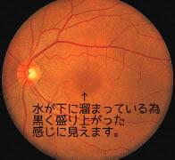 中心性網膜炎