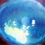 ヘルペス性角膜炎
